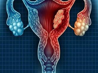 Biểu hiện lạ ở vùng thân dưới cảnh báo sớm bệnh ung thư buồng trứng, phụ nữ đừng nên bỏ qua