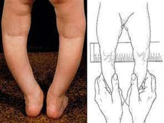 Nguyên nhân khiến trẻ bị chân vòng kiềng, mẹ nên biết sớm để giúp con có đôi chân thon dài đáng mơ ước