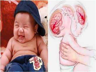 Những kiểu đùa nghịch nguy hiểm có thể 'đoạt mạng' trẻ sơ sinh mà nhiều bố mẹ Việt hay làm