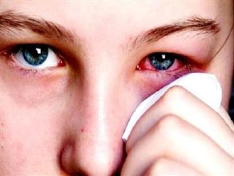 Đau mắt đỏ bệnh thường gặp vô cùng khó chịu trong những ngày hè