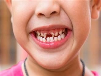 3 căn bệnh răng miệng nguy hiểm thường gặp ở trẻ nhỏ, bố mẹ chăm con tuyệt đối đừng nên chủ quan