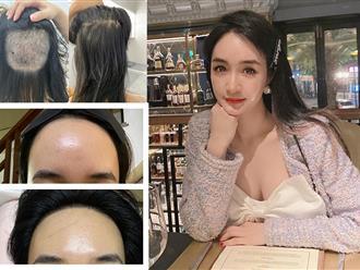 """Chi 90 triệu để cấy tóc """"trị"""" trán dô: Cô nàng này thú nhận từng bất an cực độ vì tóc rụng lả tả, sau nửa năm mới dám thở phào nhẹ nhõm"""