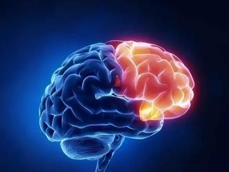 """4 yếu tố là """"lời nguyền"""" của nhồi máu não ở tuổi trung niên: Tránh được và làm tốt 3 việc sau thì giảm được 70-80% nguy cơ đột quỵ, không lo tử vong hay thương tật vĩnh viễn"""