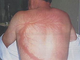 """Kỳ lạ người đàn ông bị sét đánh 7 lần liên tục, cơ thể tổn thương từ bên ngoài đến nội tạng vẫn không chết, được người ta mệnh danh là """"vua lỳ đòn"""""""