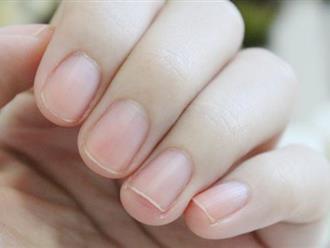 Người có mạch máu thông suốt, khỏe mạnh thường có chung 3 dấu hiệu nhỏ này ở ngón tay: Nếu có đủ, bạn có tiềm năng trường thọ rất cao!