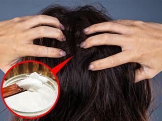 Vì sao nhiều người trẻ tóc bạc sớm và cách đảo ngược quá trình bạc tóc