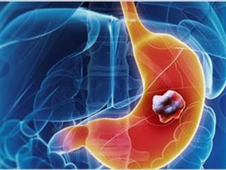 11 loại ung thư hay gặp sau tuổi 40, phổ biến nhất là ung thư đường tiêu hóa