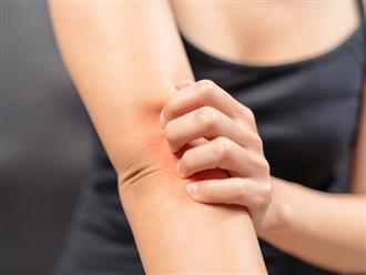 15 dấu hiệu bệnh gan biểu hiện ra ngoài cơ thể, không thể lơ là