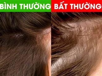 8 dấu hiệu bất thường từ mái tóc cảnh báo vấn đề sức khỏe trong cơ thể