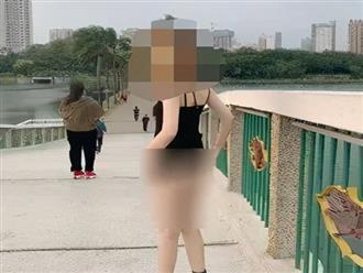 Cô gái 'trần trụi với thiên nhiên' chụp ảnh trong công viên, chuyên gia tâm lý phân tích, thì ra là do loại bệnh này