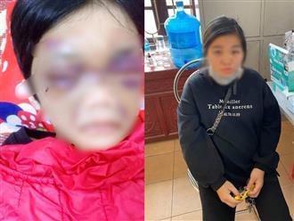 Hải Dương: Bé gái 6 tuổi bị mẹ đẻ bạo hành vì 'nhiều lần đi vệ sinh không nói với mẹ'