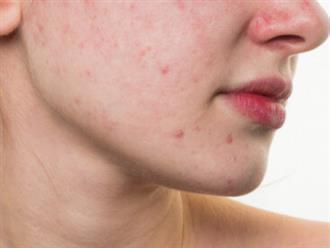 5 sai lầm hàng ngày âm thầm làm da mặt xấu xí, nổi mụn