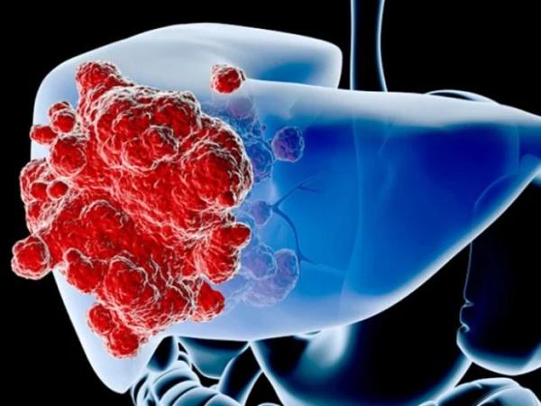 7 dấu hiệu cảnh báo ung thư sớm, một số triệu chứng quen thuộc thường bị bỏ qua - Ảnh 2