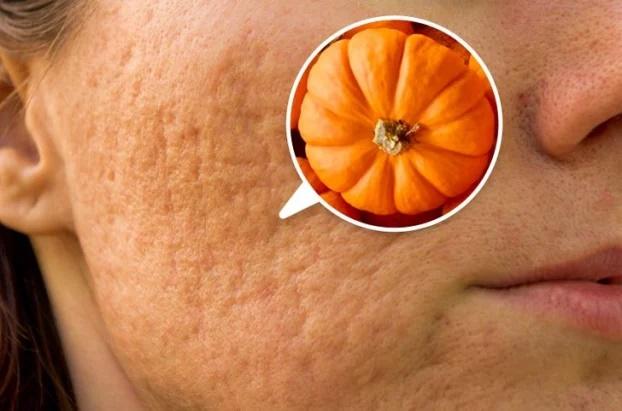 7 thực phẩm trị sẹo mụn tự nhiên hiệu quả tại nhà - Ảnh 2