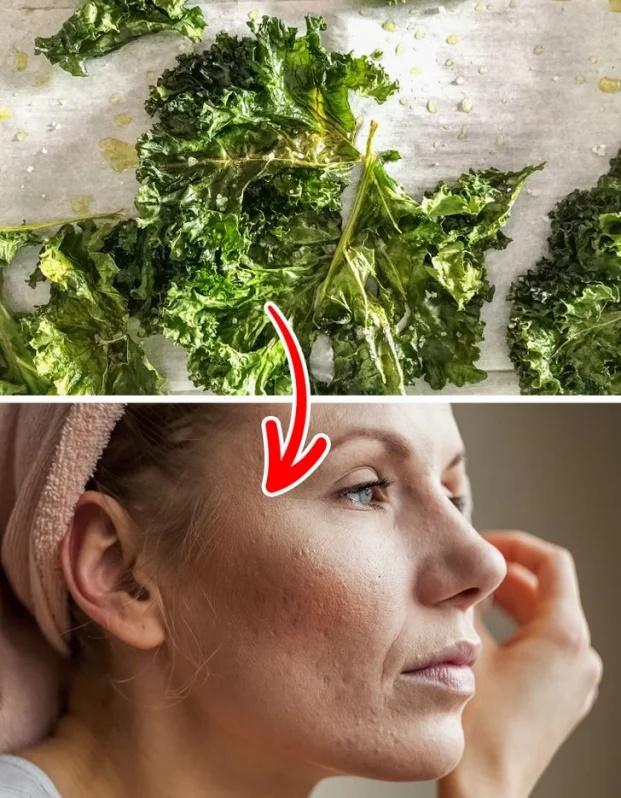 7 thực phẩm trị sẹo mụn tự nhiên hiệu quả tại nhà - Ảnh 3