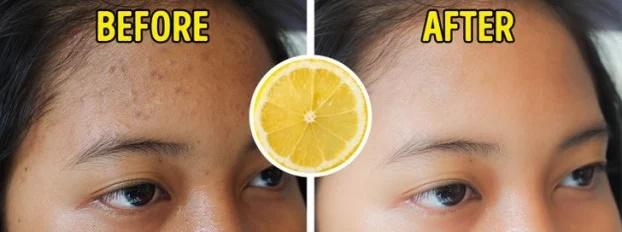 7 thực phẩm trị sẹo mụn tự nhiên hiệu quả tại nhà - Ảnh 4