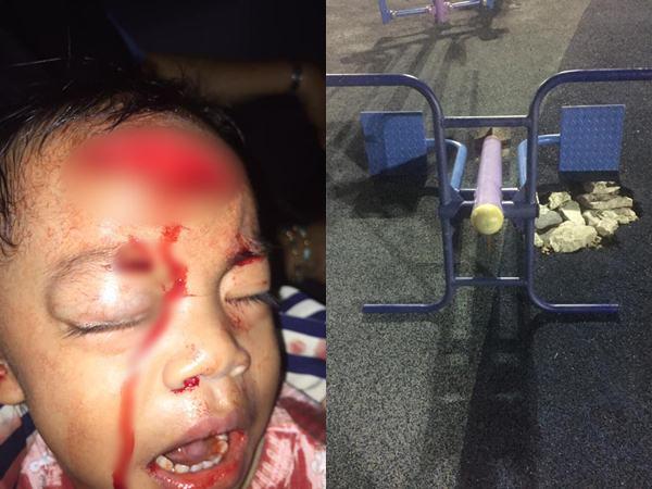 Bé trai bị thương nghiêm trọng do đồ vật công viên nào cũng có, bố mẹ cho con đi chơi ngoài trời hết sức lưu tâm