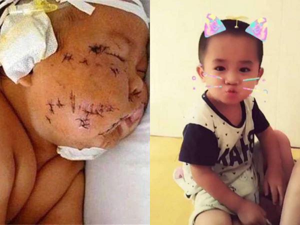 Bé trai từng bị mẹ dùng kéo rạch mặt 4 năm trước gây sốc vì gương mặt hiện tại