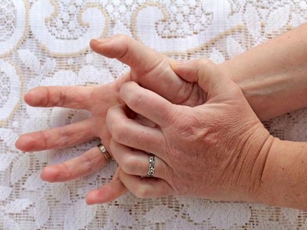 Bị cước tay chân, đau đến rớm máu trong ngày rét, bác sĩ chỉ cách chữa hiệu quả