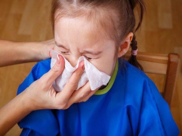 Cách chữa sổ mũi cho bé bằng dân gian hiệu quả