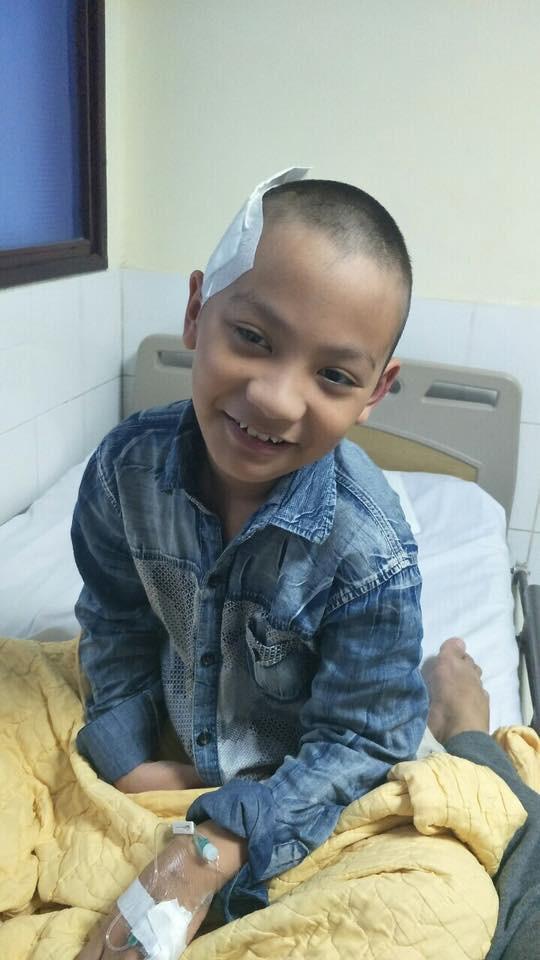 Cậu bé 9 tuổi đột nhiên bị xuất huyết não vì lý do ai cũng có thể mắc và lời cảnh báo từ người mẹ - Ảnh 6