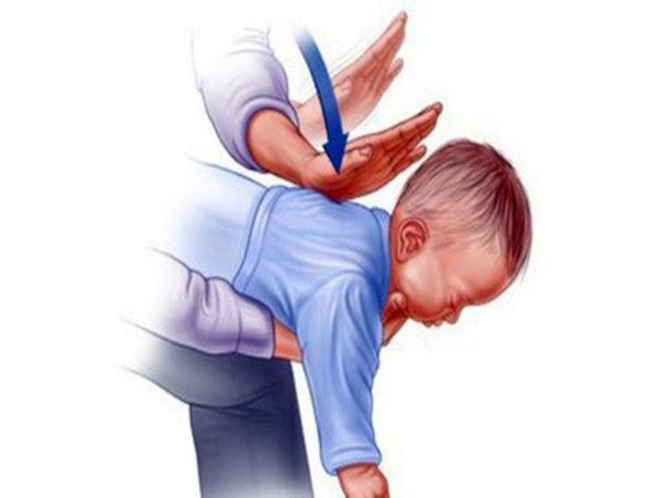 Cha mẹ phải đọc: Bác sĩ viện Tai Mũi Họng bày cách sơ cứu khi trẻ hóc dị vật để cứu mạng sống trong tích tắc