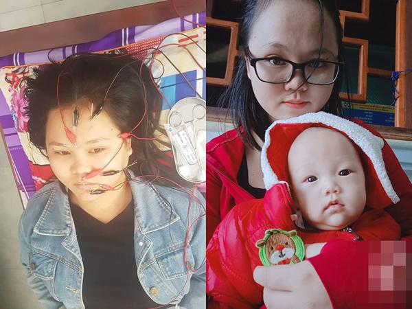 Chủ quan không kiêng cữ sau sinh, mẹ trẻ bị liệt dây thần kinh số 7