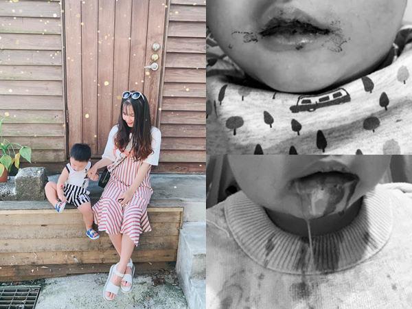 Con nhiễm bệnh từ nụ hôn của người thân, mẹ Việt hoảng loạn khi miệng bé chảy máu không ngừng