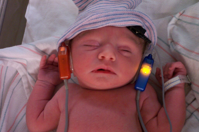Đây là lý do bác sĩ khuyến nghị mọi đứa trẻ nên được kiểm tra thính lực ngay khi chào đời - Ảnh 2