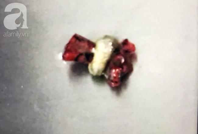 Hiểm họa khôn lường: Nuốt quà sinh nhật mẹ mua, bé gái 6 tuổi suýt chết vì thủng 4 lỗ ở ruột - Ảnh 4