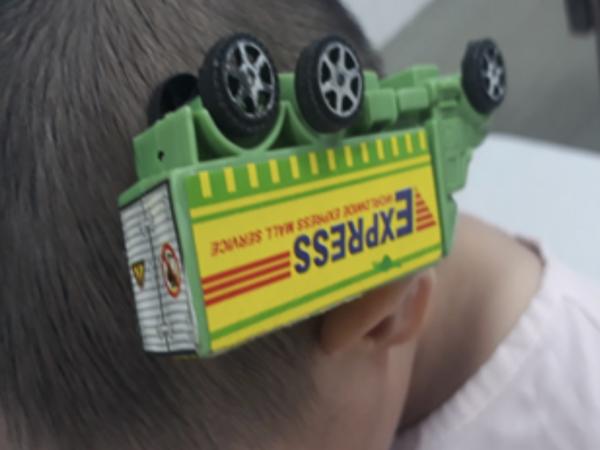 Hiểm họa khôn lường: Té ngã vào xe đồ chơi, bé trai 3 tuổi bị que sắt cắm thẳng vào đầu