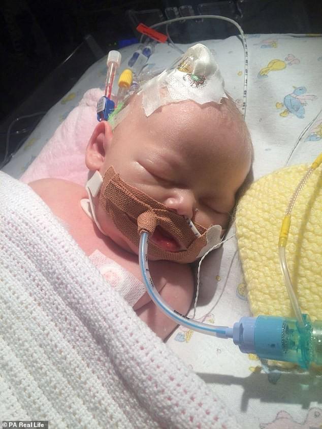 Lại thêm 1 bà mẹ đau đớn mất con mới 14 ngày tuổi vì nụ hôn của người lớn - Ảnh 2