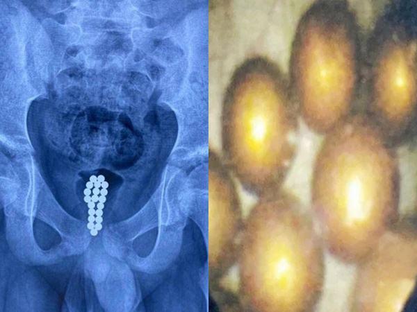 Nhét 20 quả bóng từ tính vào dương vật, cậu bé 11 tuổi khiến bác sĩ cũng bị sốc