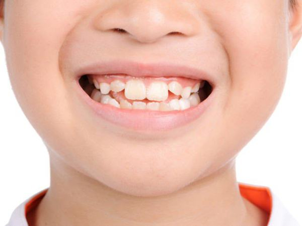 """""""Thủ phạm"""" bất ngờ gây răng mọc lệch ở trẻ nhỏ bất cứ bậc cha mẹ nào cũng nên biết"""