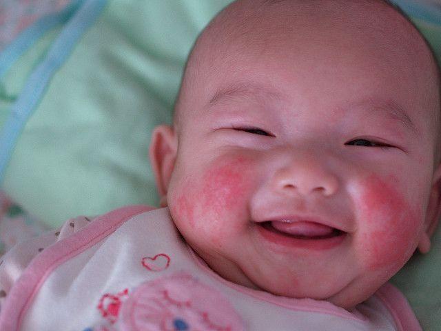 Trẻ sơ sinh bị nổi mẩn đỏ khắp người mẹ nên làm thế nào? - Ảnh 1