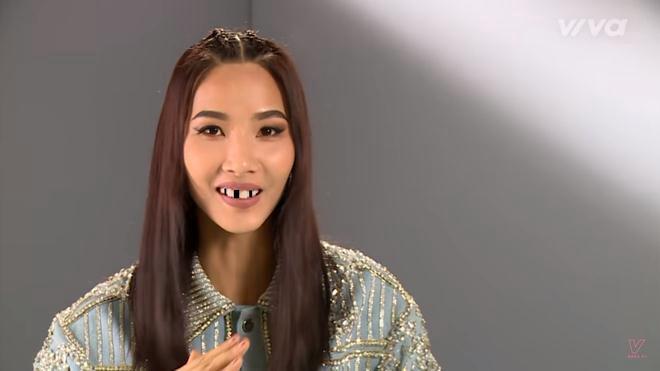 Trai xinh, gái đẹp showbiz Việt sẽ ra sao nếu một ngày bất ngờ… sún răng? - Ảnh 14