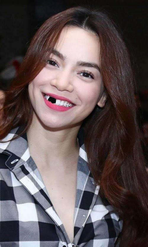 Trai xinh, gái đẹp showbiz Việt sẽ ra sao nếu một ngày bất ngờ… sún răng? - Ảnh 1