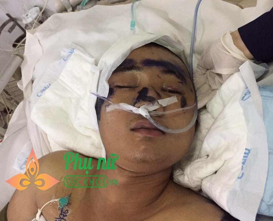 Bệnh viện Quân y 175 tìm người thân cho nam thanh niên bị tai nạn giao thông, chấn thương sọ não, tính mạng nguy kịch
