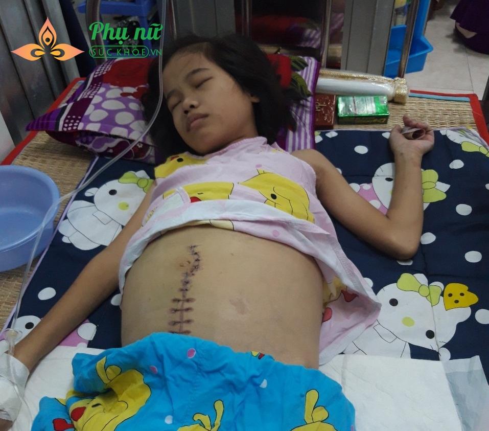 Xót lòng bé gái 14 tuổi bị ung thư cổ tử cung nguy hiểm đến tính mạng, cha mẹ nghèo đi xin từng đồng cứu lấy con