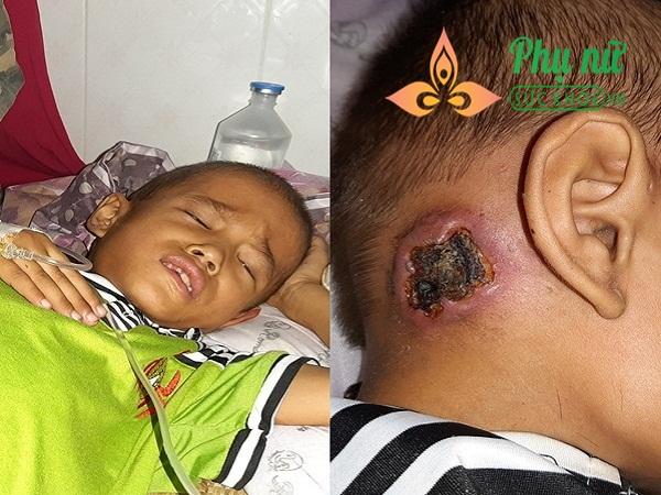 Xót xa bé trai bị bệnh ung thư xương, khắp người lở loét, oằn mình đau đớn chiến đấu với bệnh tật