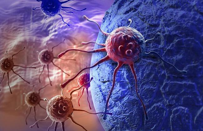 Ai cũng có 'tế bào ung thư', chuyên gia kiến nghị 4 bộ mật mã chống ung thư, lợi ích cả đời - Ảnh 3