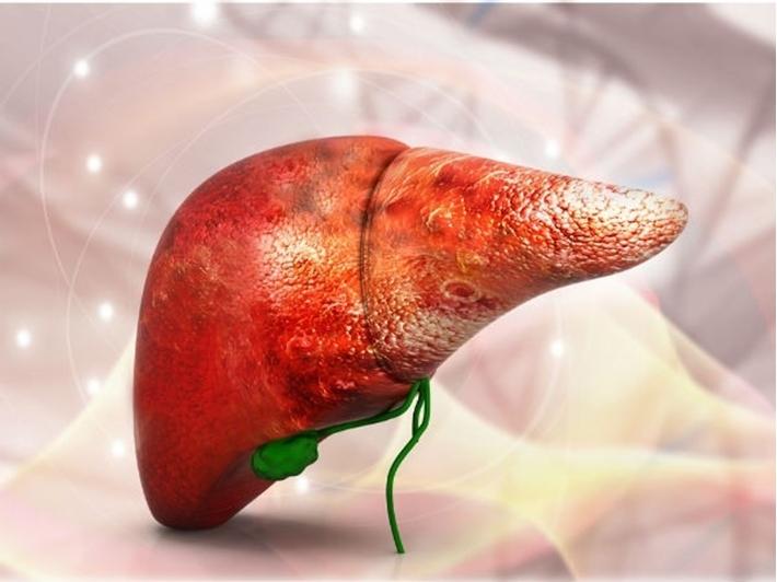 Nam shipper được chẩn đoán ung thư gan, bác sĩ khuyên: Có 3 bất thường này sau bữa ăn, đừng chần chừ mà nên đi khám gan khẩn cấp - Ảnh 4