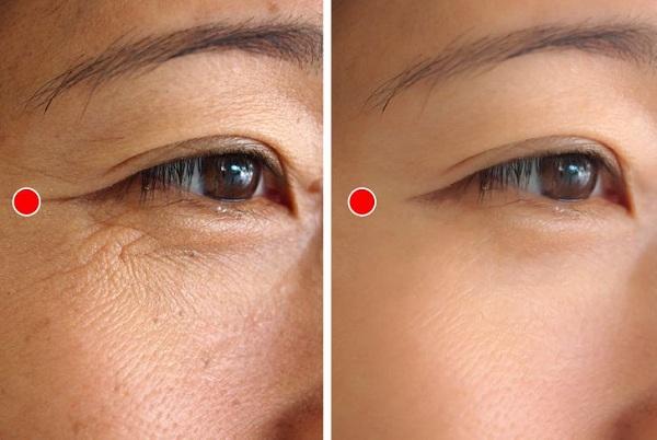 Bài tập 1 phút của người Nhật giúp xóa nếp nhăn quanh mắt - Ảnh 1