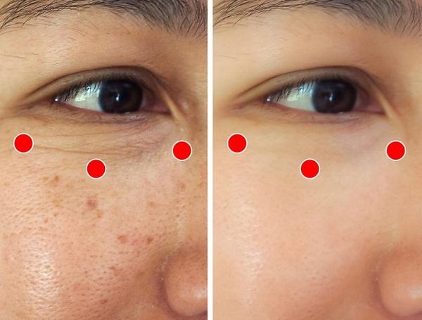 Bài tập 1 phút của người Nhật giúp xóa nếp nhăn quanh mắt - Ảnh 2