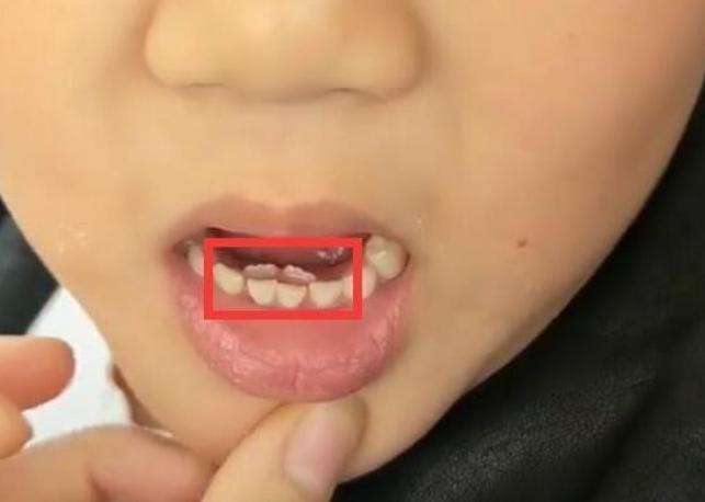 Bé gái 8 tuổi tự nhiên kêu đau răng, bà kiểm tra thấy phía trong hàm răng có 'vật thể lạ' - Ảnh 1