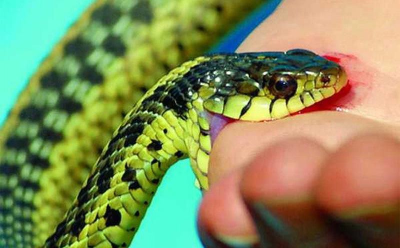 Bé 13 tuổi tử vong thương tâm do đắp thuốc nam trị rắn cắn, bác sĩ khuyến cáo đây là phương pháp chưa có cơ sở khoa học - Ảnh 1