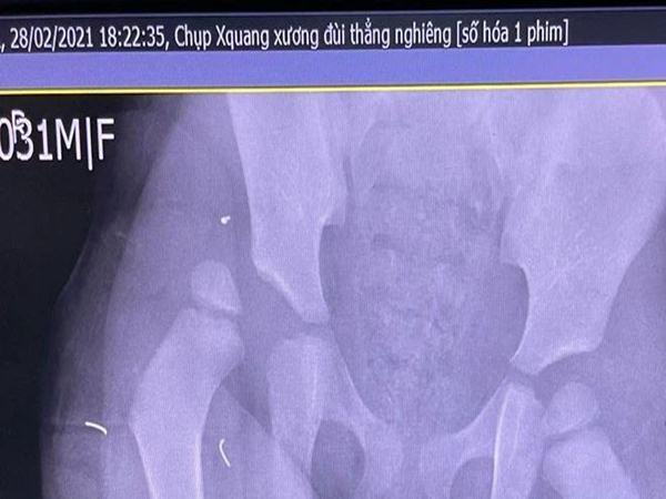"""Bác sĩ thốt lên """"Tôi không thể tưởng tượng..."""" khi nhìn ảnh chụp CT đầu của bé gái rơi từ tầng 13 chung cư"""