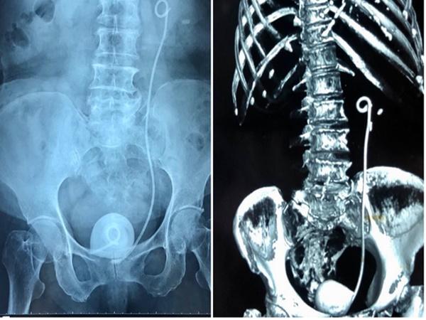Bà cụ có viên sỏi thận to 'ngoại cỡ' vì bỏ quên ống sonde trong niệu quản 9 năm
