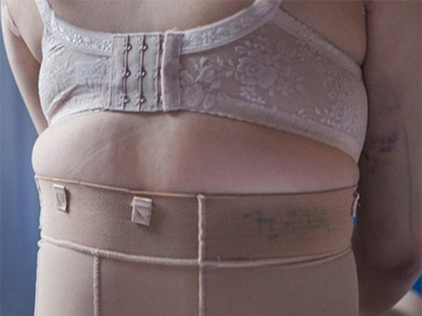 Từ vụ nịt bụng vì bị chê mập rồi gặp họa mang khối u tụy lớn nhất thế giới: Giới chuyên gia lên tiếng cảnh báo!