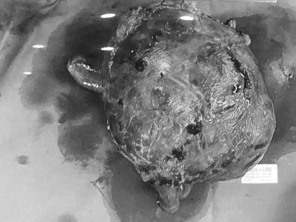 Cứ tưởng béo bụng, người phụ nữ đi khám phát hiện khối u khổng lồ